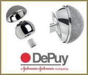 Depuy Pinnacle